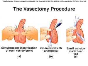 Mekanisme vasektomi