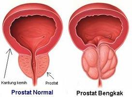 gambar prostat bengkak