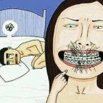 Bahaya Kawat Gigi