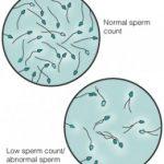 4 Jenis Gangguan Sperma yang Umum Dialami Kaum Pria