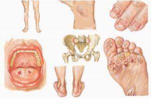 Klamidia adalah salah satu jenis penyakit menular seksual berbahaya