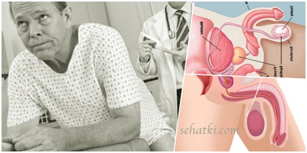 Gejala kanker prostat padap pria