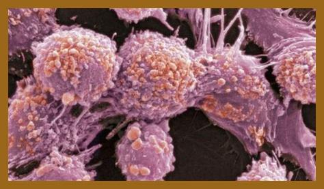 Faktor genetik penyebab kanker prostat