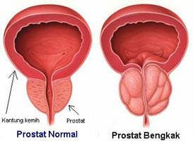 Image result for prostat bengkak