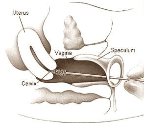 Letak serviks (leher rahim)
