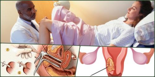 Pemeriksaan kanker serviks pada wanita