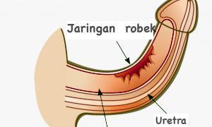 Penis patah akibat obat kuat
