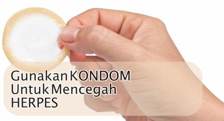 Gunakan kondom untuk menghindari herpes