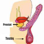 4 Cara Mengobati Kanker Prostat Secara Medis