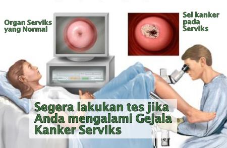 Diagnosa kanker serviks oleh dokter