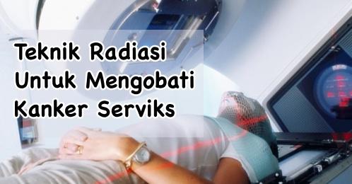 Mengobati kanker serviks dengan radiasi
