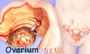 Diagnosa kanker ovarium
