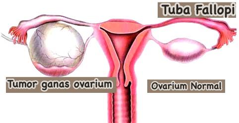 Tanda tumor ovarium menjadi ganas